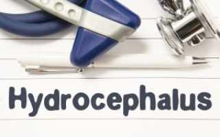 Причины гидроцефалии головного мозга у взрослых