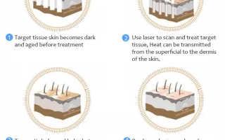 Laser skin rejuvenation with fractional CO2 laser