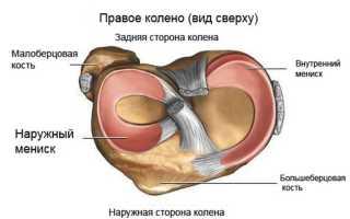 Повреждение надколенника коленного сустава
