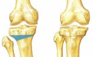 Остеотомия тазобедренного сустава