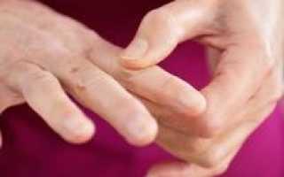 Причины онемения пальцев на руках