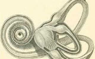 Отогенный лабиринтит