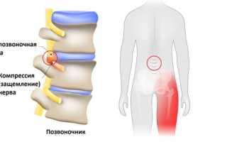 Зажатие седалищного нерва