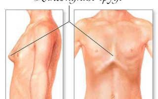 Деформация грудной клетки упражнения