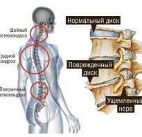 Назначение при остеохондрозе
