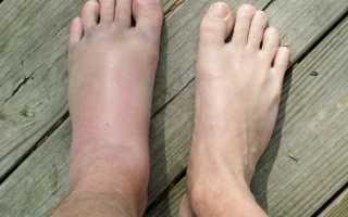 Отечность ноги после перелома