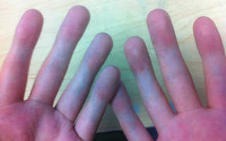 Не гнется палец на руке