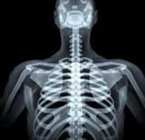 Обзорная рентгенограмма грудной клетки