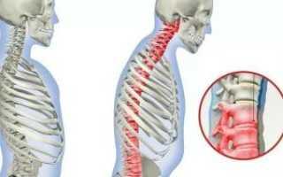 Как лечить грудной хондроз