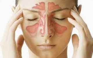Сопли с кровью — причины и лечение кровяного насморка