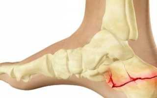 Трещина пяточной кости лечение