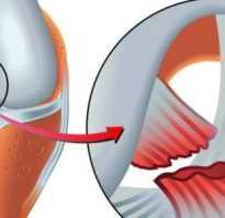 Порванные связки на ноге последствия