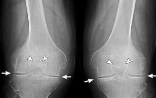 Артроз коленного сустава мазь