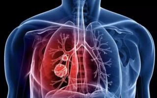 Диагностика пневмонии — как обнаружить воспаление легких, симптомы и признаки