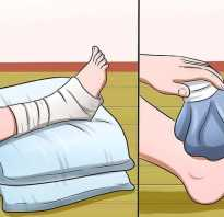 Ушиб ноги что делать