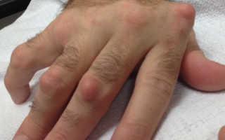 Растет шишка на пальце руки