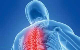 Грыжа в грудном отделе позвоночника лечение