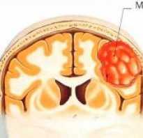 Менингиома последствия после операции