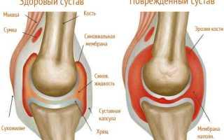 Артрит коленного сустава у ребенка лечение
