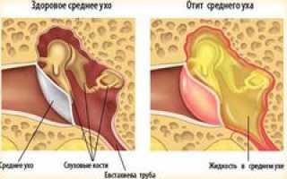 Закладывает уши при простуде — причины, какими лекарствами лечить