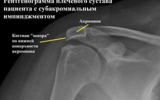 Субакромиальный импинджмент синдром плечевого сустава