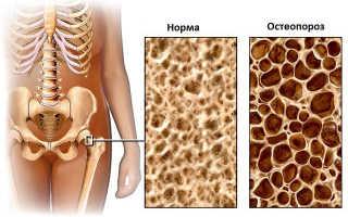 Анализ плотности костей
