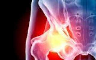 Ревматоидный артрит тазобедренного сустава симптомы