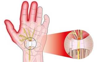 Анемия мизинца левой руки