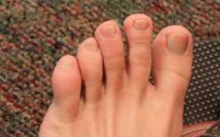 Пальцы на ногах покраснели и опухли