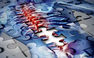 Лечение грыжи шморля грудного отдела позвоночника