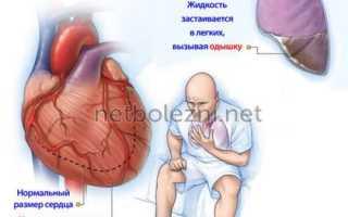 Синдром неполного вдоха