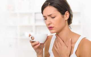 Боль сухость в горле без температуры и насморка