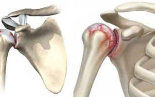 Как лечить артрит плеча