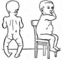 Рахитная грудная клетка