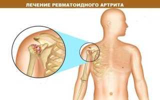 Клинические рекомендации по ревматоидному артриту