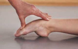 Болит подъем стопы при ходьбе