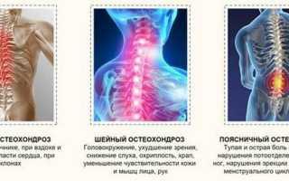 Болеутоляющие при остеохондрозе