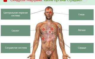 Марфаноподобные синдромы