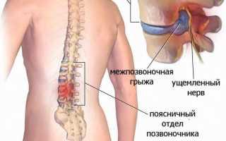 Размеры грыжи шейного отдела позвоночника