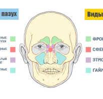 Болит горло когда глотаю боль отдает в ухо