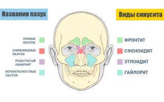 Боль в горле отдающая в ухо причины лечение