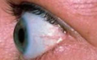 Офтальмомиопатия что это