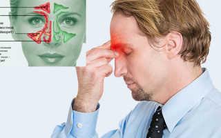 Гнойный этмоидит — лечение и причины болезни
