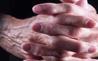 Как лечить артроз кисти руки