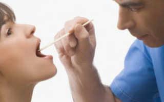 Сухой кашель и боль в горле при высокой температуре