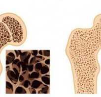 Разрушаются кости болезнь