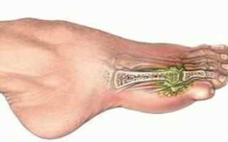 Внутрисуставной перелом пальца ноги