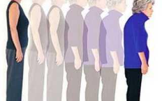Проблеми остеопорозу