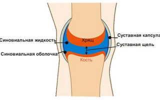Как вывести жидкость из коленного сустава