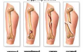 Лечение перелома малой берцовой кости со смещением